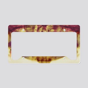 Root-canal treatment, dental  License Plate Holder