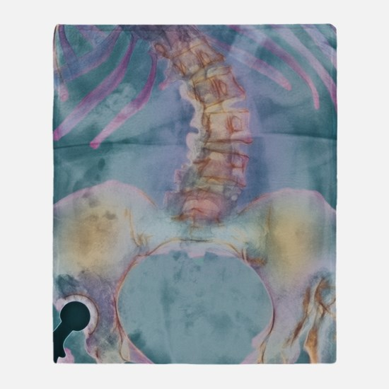 Scoliosis spine deformity, X-ray Throw Blanket