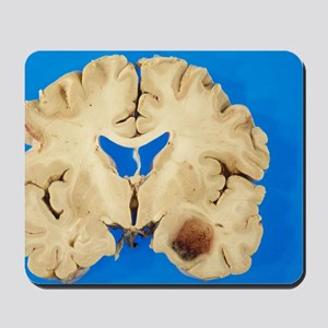 Secondary brain cancer Mousepad