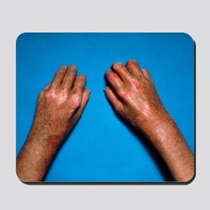 Shiny toughened skin on hands due to scl Mousepad