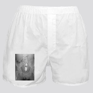 Sex toy in man's rectum, X-ray Boxer Shorts