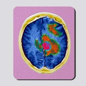 Secondary brain cancers, CT scan Mousepad