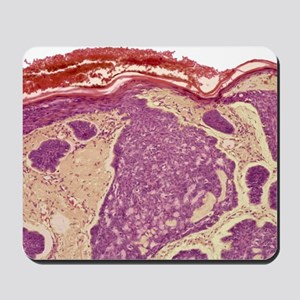 Skin cancer, light micrograph Mousepad
