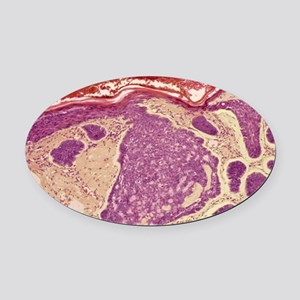 Skin cancer, light micrograph Oval Car Magnet