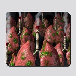 Smoker's lungs, conceptual artwork Mousepad