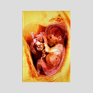 9 month foetus, MRI scan Rectangle Magnet