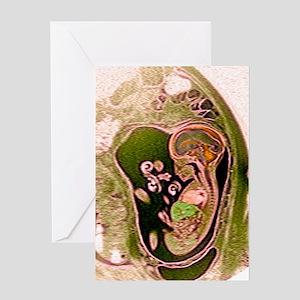 9 month foetus, MRI scan Greeting Card