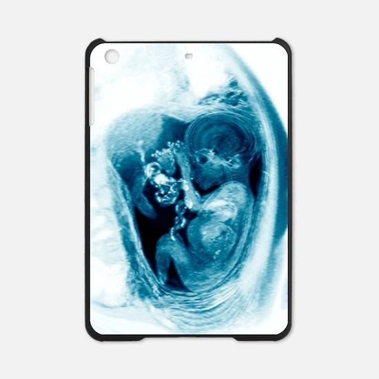 9 month foetus, MRI scan iPad Mini Case