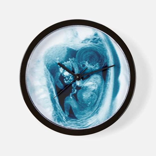 9 month foetus, MRI scan Wall Clock