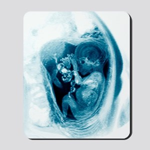 9 month foetus, MRI scan Mousepad
