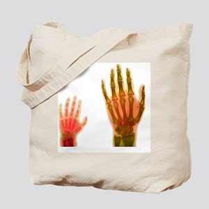 Adult and child hand X-rays Tote Bag
