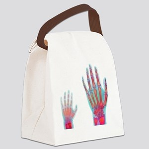 Adult and child hand X-rays Canvas Lunch Bag