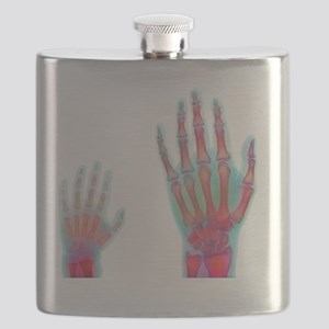 Adult and child hand X-rays Flask