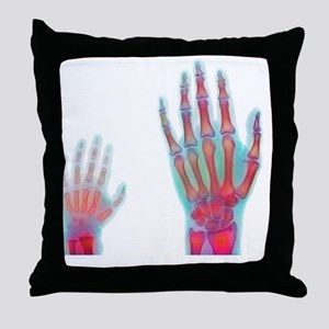 Adult and child hand X-rays Throw Pillow