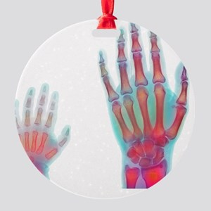 Adult and child hand X-rays Round Ornament