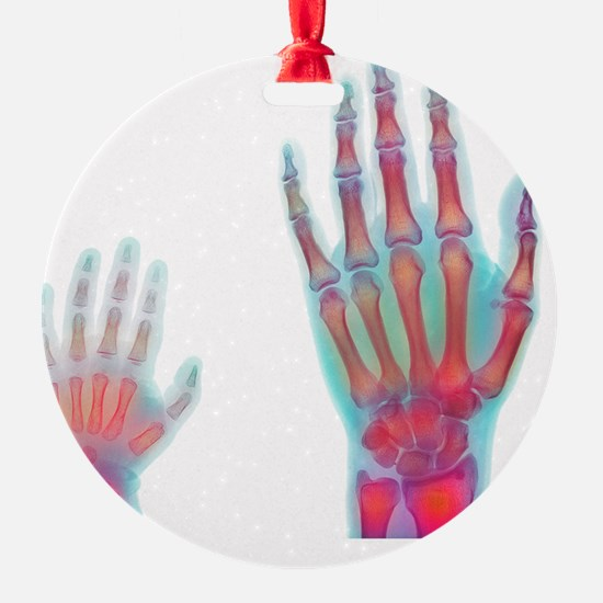 Adult and child hand X-rays Ornament