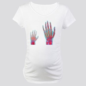 Adult and child hand X-rays Maternity T-Shirt