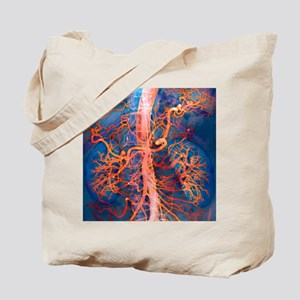 Abdominal arteries, X-ray Tote Bag