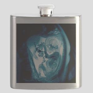 9 month foetus, MRI scan Flask