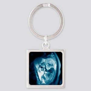 9 month foetus, MRI scan Square Keychain