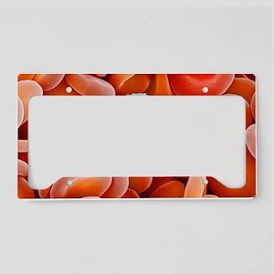 Blood cells, SEM License Plate Holder