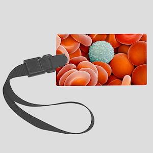 Blood cells, SEM Large Luggage Tag