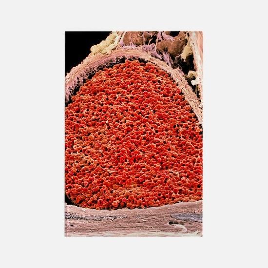 Blood-filled foetal aorta, SEM Rectangle Magnet