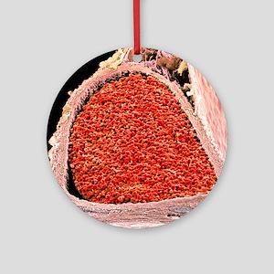 Blood-filled foetal aorta, SEM Round Ornament