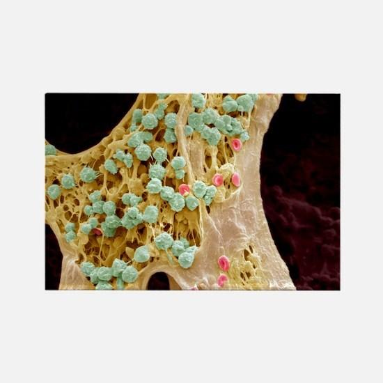 Bone marrow, SEM Rectangle Magnet