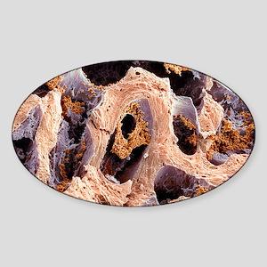 Bone marrow, SEM Sticker (Oval)