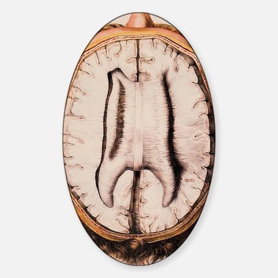Brain anatomy Sticker (Oval)