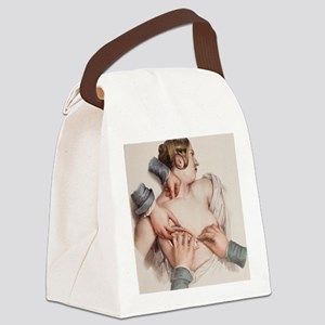 Breast removal surgery Canvas Lunch Bag