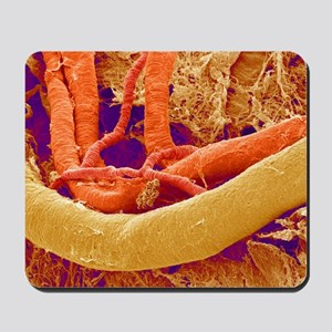 Brain blood vessels, SEM Mousepad