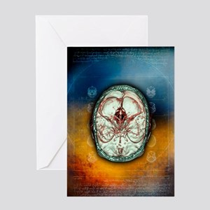 Brain and blood vessels, 3-D CT scan Greeting Card