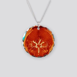 Brain and arteries, coloured Necklace Circle Charm