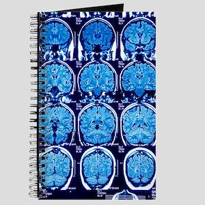 Brain scans, MRI scans Journal