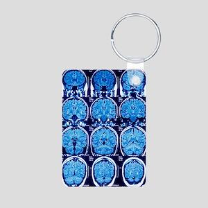 Brain scans, MRI scans Aluminum Photo Keychain