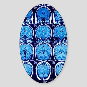 Brain scans, MRI scans Sticker (Oval)