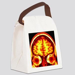 Brain, MRI scan Canvas Lunch Bag