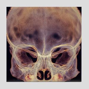 Child's skull Tile Coaster