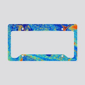Cerebellum tissue, light micr License Plate Holder