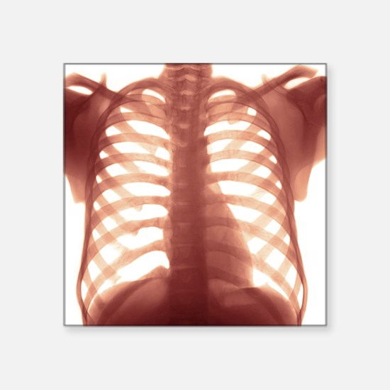 """Chest X-ray of a healhty hu Square Sticker 3"""" x 3"""""""