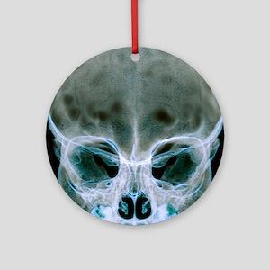 Child's skull Round Ornament