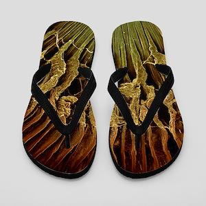 Ciliary body, SEM Flip Flops