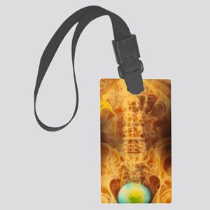Colour X-ray urogram showing a f Large Luggage Tag