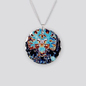 Coloured MRI scans of the br Necklace Circle Charm