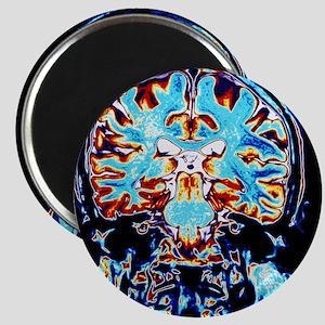 Coloured MRI scans of the brain, coronal vi Magnet