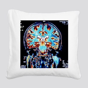 Coloured MRI scans of the bra Square Canvas Pillow