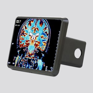 Coloured MRI scans of the  Rectangular Hitch Cover