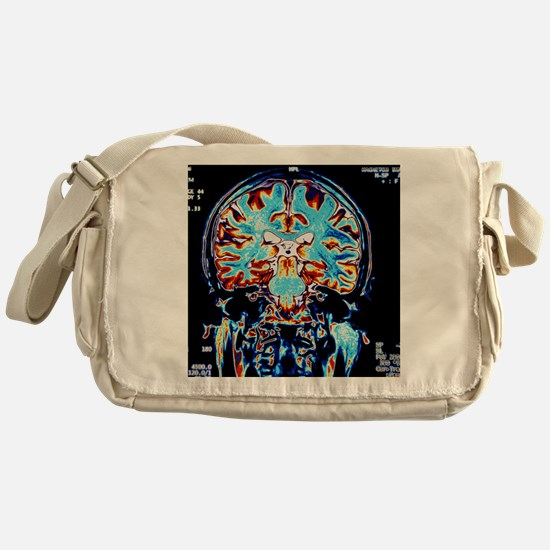 Coloured MRI scans of the brain, cor Messenger Bag
